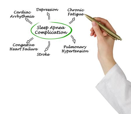 hipertension: Complicación De Apnea del Sueño Foto de archivo