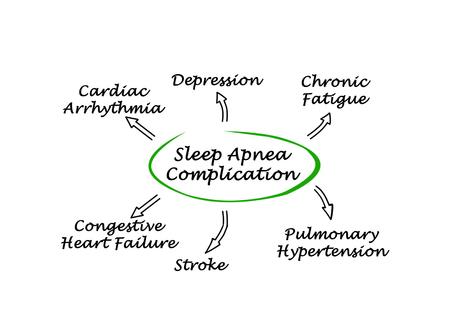 dormir: Complicación De Apnea del Sueño Foto de archivo