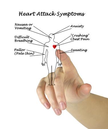symptoms: Heart Attack Symptoms Stock Photo