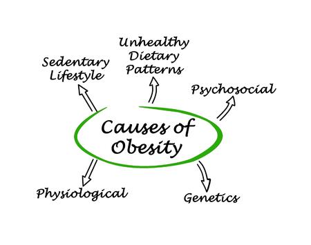 sedentario: Causas de la obesidad Foto de archivo