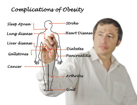 gallstones: Complications of Obesity Stock Photo
