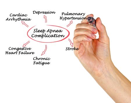 complication: Complication Of Sleep Apnea