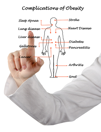 complications: Complications of Obesity Stock Photo