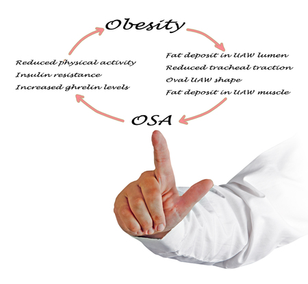 Relationship between OSA and obesity Stock Photo