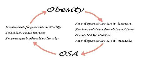 lumen: Relationship between OSA and obesity Stock Photo