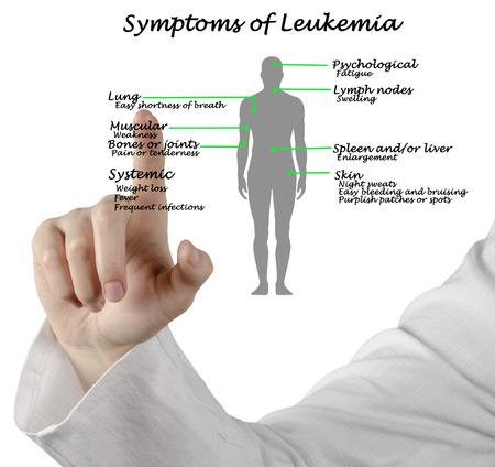 leucemia: Los síntomas comunes de la leucemia