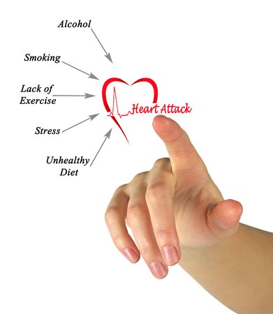 Causes of heart attack 版權商用圖片