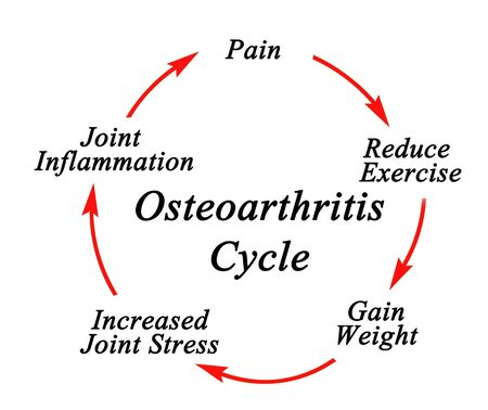 Five components of Osteoarthritis Cycle Reklamní fotografie