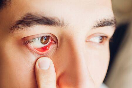 Infected sty barley purulent eye. Stock Photo