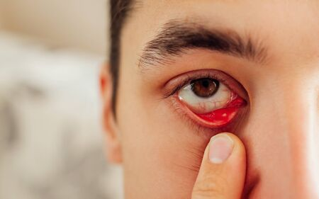 Infected sty barley purulent eye. Man pulls down lower eyelid showing inflammation pus of eyelash hair bag caused by Staphylococcus aureus. Meibomite. Health care
