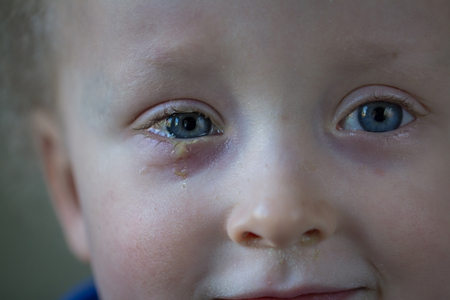 Little boy with purulent conjunctivitis on his right eye. Contagious eye infection, symptoms and treatment concept. Close up.