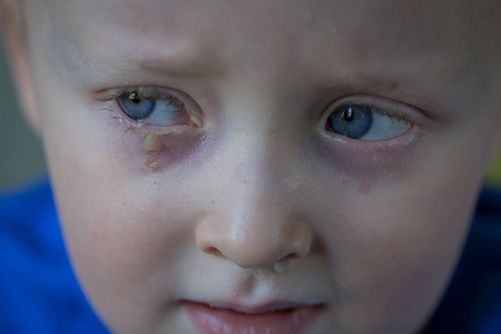 Sad, snivel little boy with purulent conjunctivitis on his right eye. Contagious eye infection, symptoms and treatment concept. Close up.