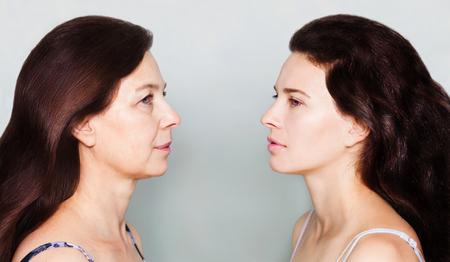 Concetto di bellezza l'invecchiamento della pelle, procedure anti-invecchiamento, ringiovanimento, sollevamento, stringendo della pelle del viso, il restauro della pelle giovane anti-rughe. Prima e dopo, madre e figlia