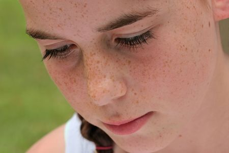 Face of a young girl with fair skin and freckles.