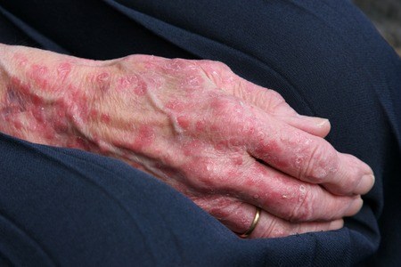 blotchy: Extreme sceriosis on the hand of an elderly female. Stock Photo