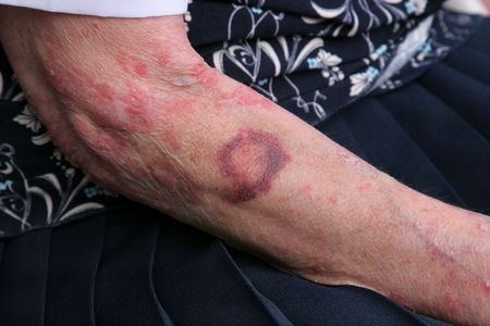 eczema: Bruise and sceriosis on the arm of an elderly female. The elderly have a tendency to bruise more easily than younger people.