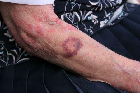 scarring: Contusione e sceriosis sul braccio di una femmina anziana. Gli anziani hanno una tendenza battere pi� facilmente della gente pi� giovane.