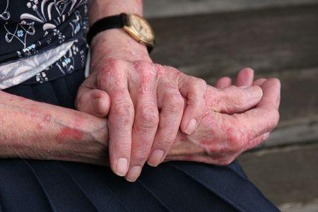 scarring: Extreme sceriosis malattia della pelle sulle mani di un anziano di sesso femminile.  Archivio Fotografico