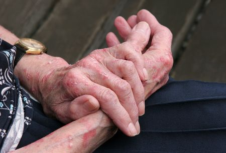 scarring: Extreme sceriosis sulle mani di una donna anziana.  Archivio Fotografico