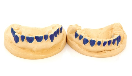 Dental teeth mould for tooth whitening gum shields over white background Stock Photo - 19317704
