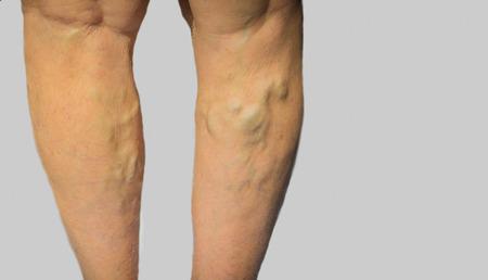灰色の老婆の足の静脈瘤
