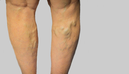 The varicose veins on a legs of old woman on gray Standard-Bild