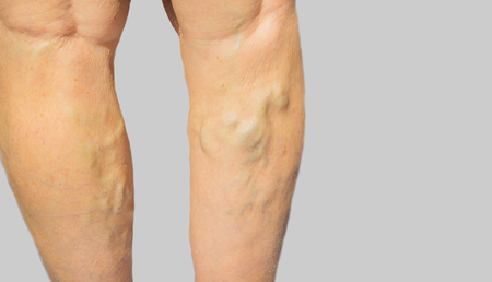ulceration: The varicose veins on a legs of old woman on gray Stock Photo