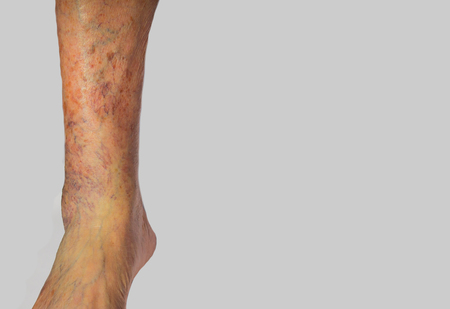 ulceration: The varicose veins on a leg of old man on gray