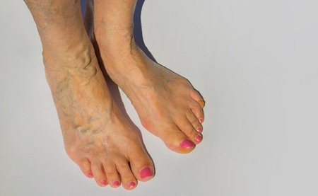 The varicose veins on a legs of old woman on gray Stock Photo