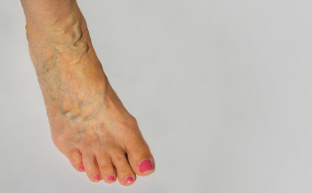 phlebotomy: The varicose veins on a leg of old woman on gray