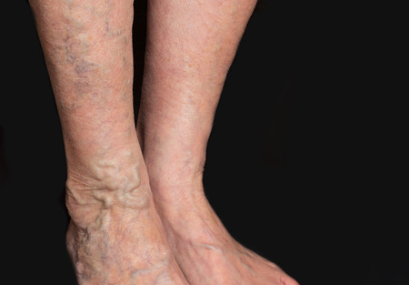 The varicose veins on a legs of old woman on black Stockfoto