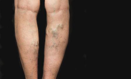 블랙에 옛 여자의 다리에 정맥류