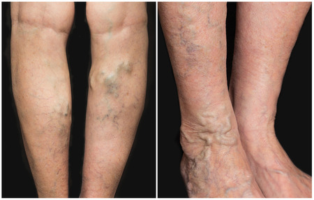 The varicose veins on a legs of old woman on gray Stockfoto