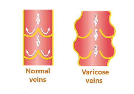 varicose: The varicose veins and normal veins Stock Photo
