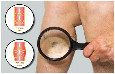 phlebotomy: Varicose veins on a female senior leg