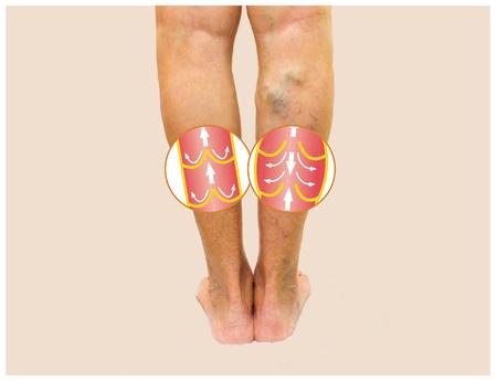 女性シニアの脚の静脈瘤