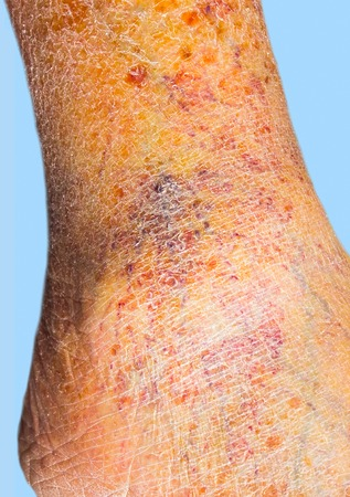venous: Close-up of skin with varicose veins