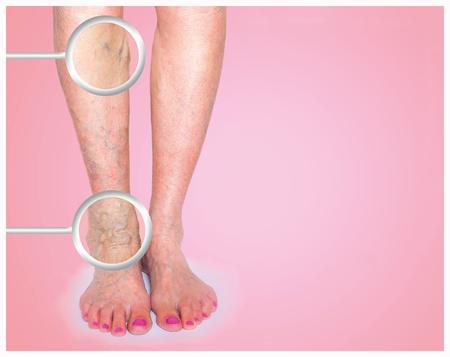 정맥류 여성 다리에 스톡 콘텐츠