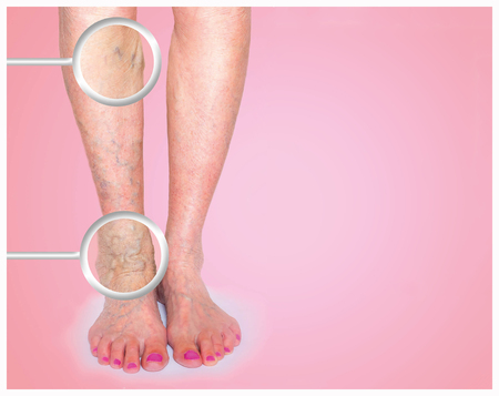 Spataderen op een vrouwelijke benen Stockfoto - 79334573