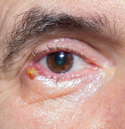 pus: close up of chalazion during ophthalmic examination.