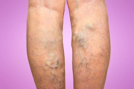 Spataderen op een vrouwelijke benen