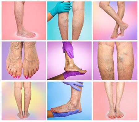 Wunderbar Vaskuläre Anatomie Der Hand Bilder - Anatomie und ...