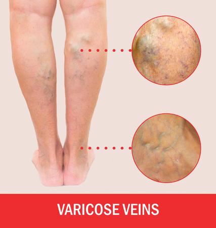통증이 심한 정맥류, 거미 정맥류, 중증도의 다리에 생긴 정맥류. 노화, 노년기 질환, 심미적 인 문제 개념.