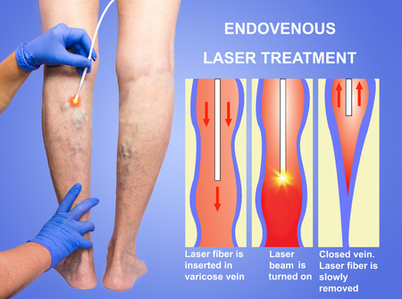 Varicose Veins and laser Banque d'images