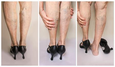 Schmerzhafte Krampfadern und Besenreiser auf weiblichen Beinen. Frau in den Fersen, die müde Beine massieren Standard-Bild - 91050754