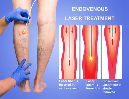 Varicose Veins and laser 写真素材