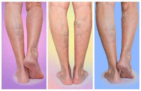 De vrouwelijke benen met adervaren spinnen. Collage