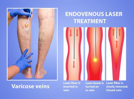 Varicose Veins and laser 스톡 콘텐츠