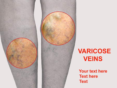 Painful varicose veins,,spider veins, varices on a severely affected leg. Ageing, old age disease, aesthetic problem concept.