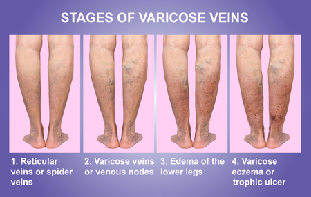 Varicose veins on a female senior leg